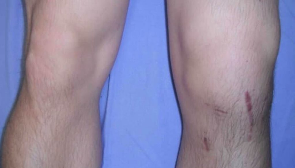 ACL Rupture HealthyMates